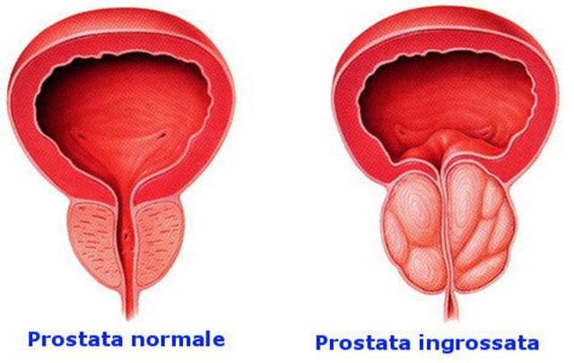 medicina-online-dott-emilio-alessio-loiacono-medico-chirurgo-roma-prostatite-batterica-abatterica-prostata-riabilitazione-nutrizionist[1]