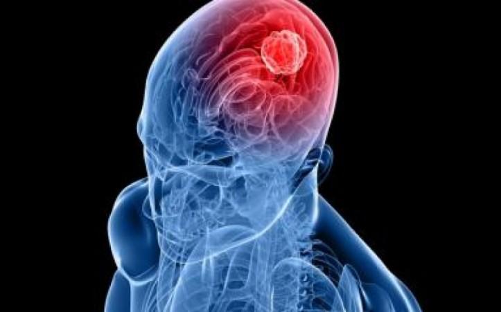 mezzora-di-cellulare-al-giorno-raddoppia-il-rischio-di-tumore-al-cervello-tumore_cervello_cancro_salute_telefonino_cellulare-800x500_c[1]